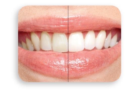 歯の自然な白さが甦る